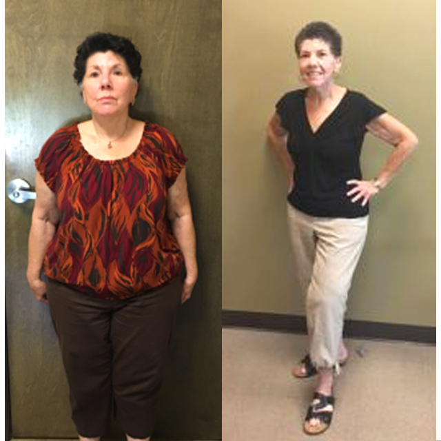 Ideal Weight Solutions of Georgetown Before & After Female 1