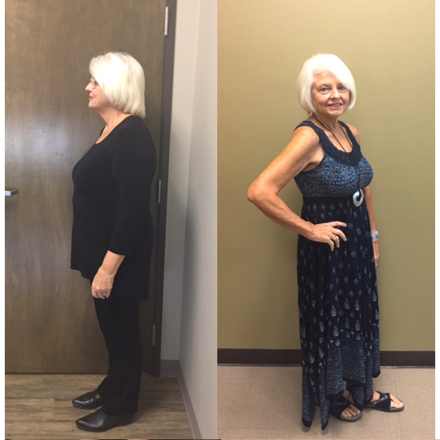 Ideal Weight Solutions of Georgetown Before & After Female 3