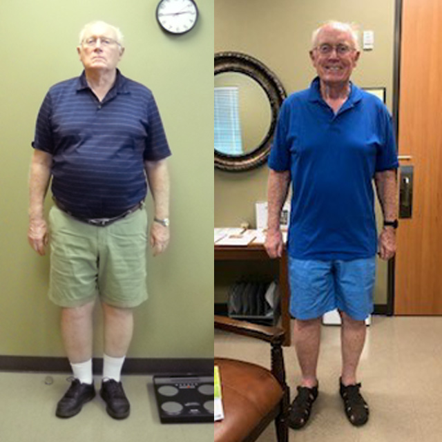 Ideal Weight Solutions of Georgetown Before & After Male 2