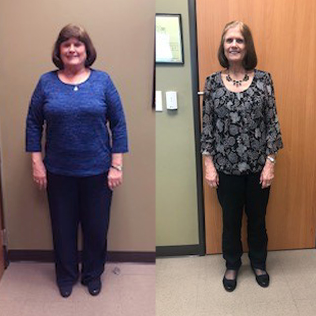 Ideal Weight Solutions of Georgetown Before & After Female 4
