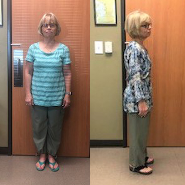 Ideal Weight Solutions of Georgetown Before & After Female 5