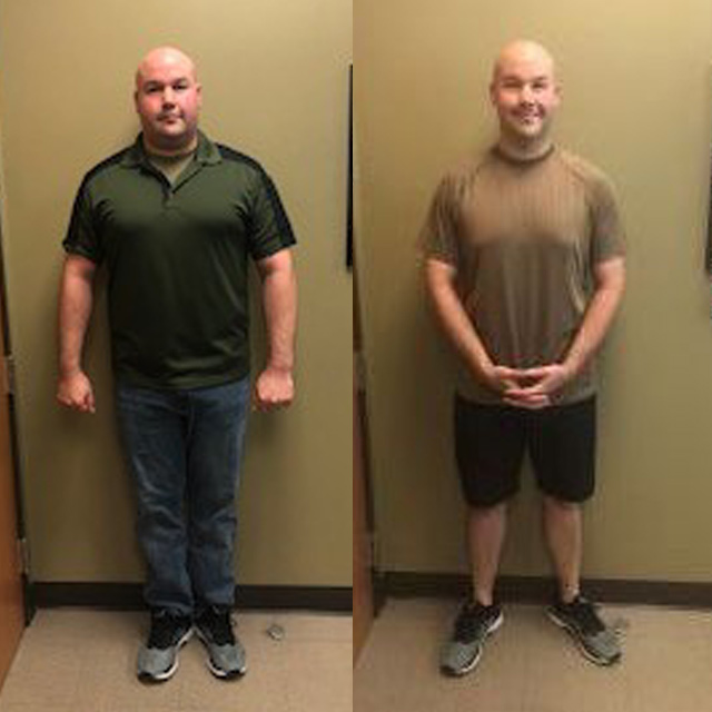 Ideal Weight Solutions of Georgetown Before & After Male 3