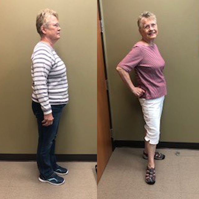 Ideal Weight Solutions of Georgetown Before & After Female 6