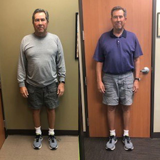 Ideal Weight Solutions of Georgetown Before & After Male 4