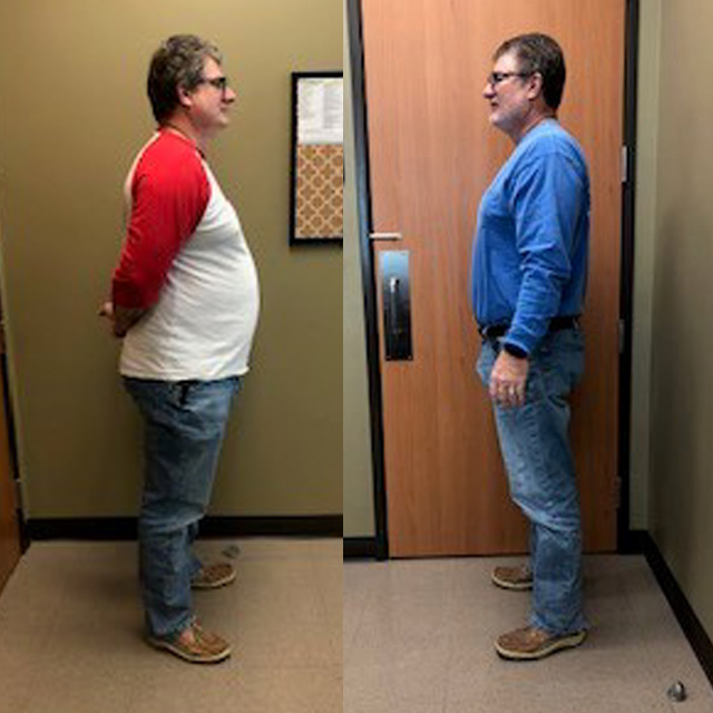Ideal Weight Solutions of Georgetown Before & After Male 5